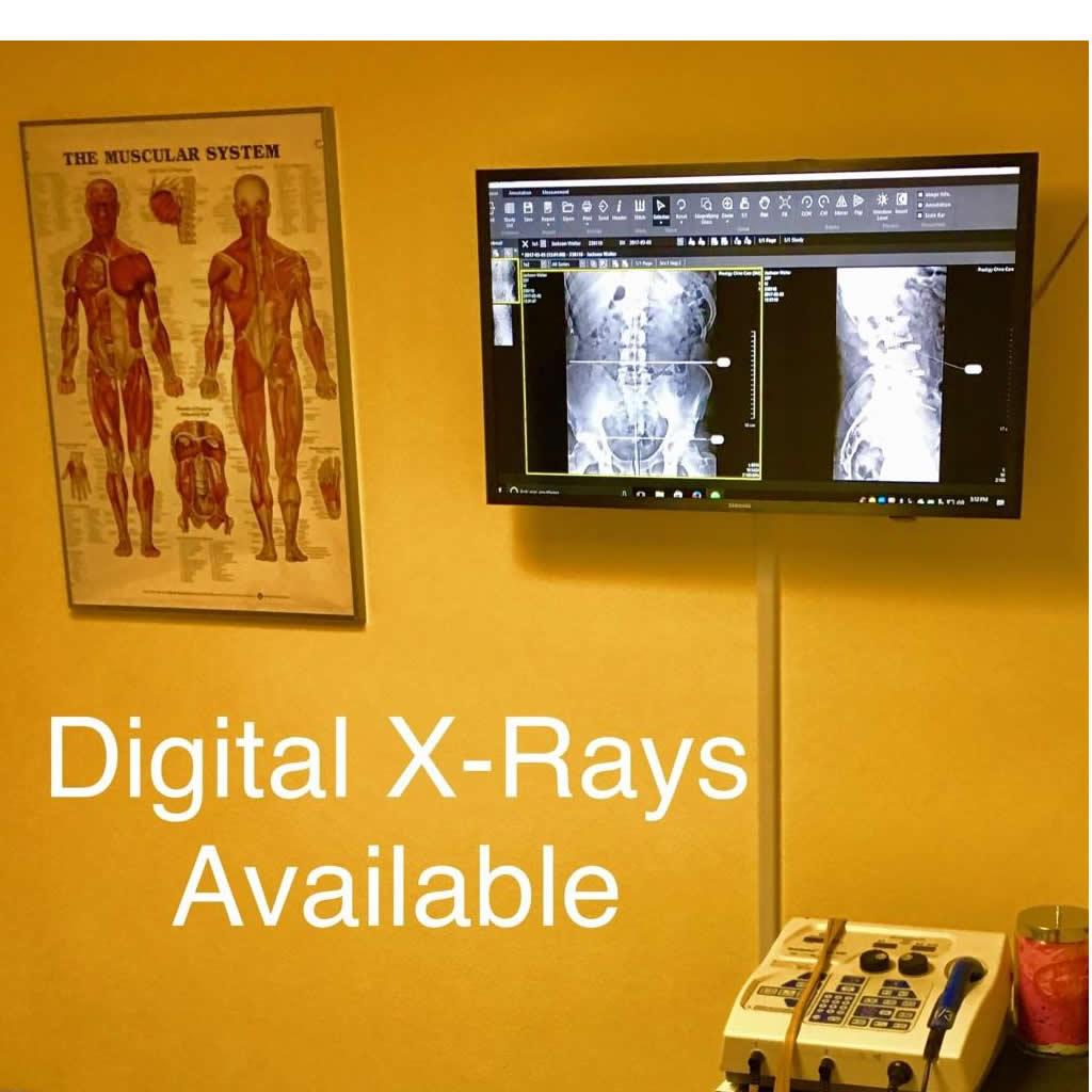 Digital X-rays Culver City Chiropractor
